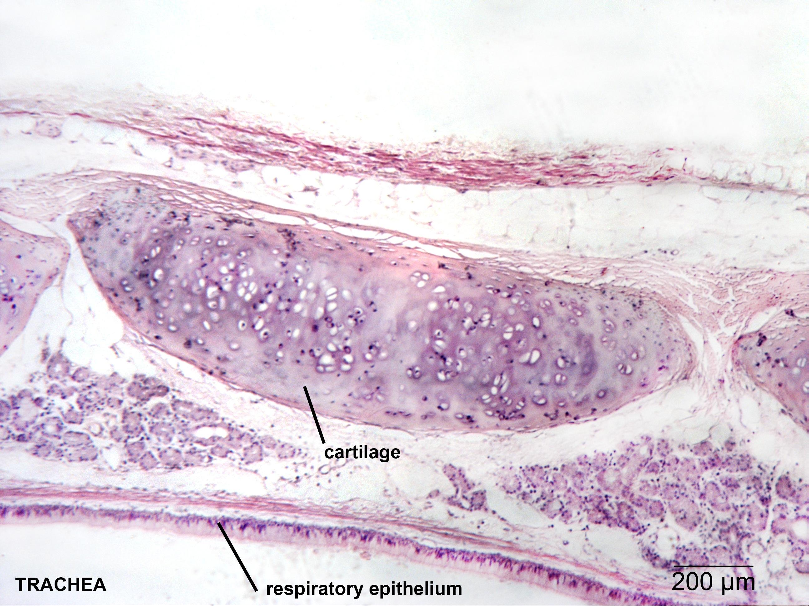 Respiratory | NP Histology